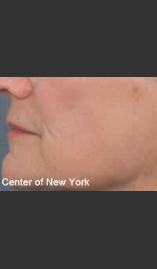 After Photo for Treatment of Lines and Wrinkles with Fraxel - Roy G. Geronemus, M.D. - Prejuvenation