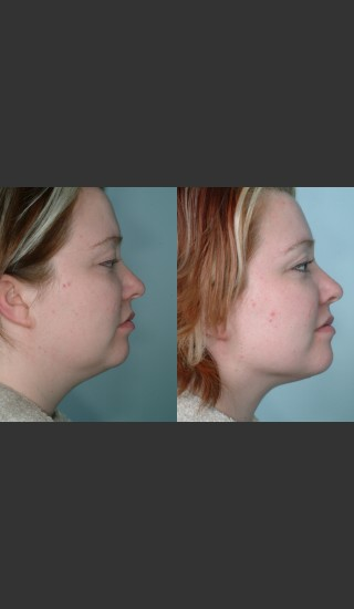 Before Photo for Submental and arm localized liposuction - Mark B. Taylor, M.D. - Prejuvenation