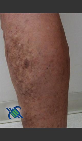 After Photo for Treatment of Lower Leg Veins - Roy G. Geronemus, M.D. - Prejuvenation