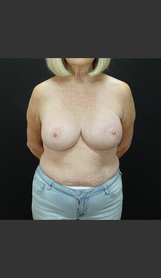 After Photo for Breast Augmentation with a Lift - Gallaher Plastic Surgery & Spa MD - Prejuvenation