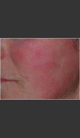 After Photo for IPL Rosacea Treatment #16 - Harvey H. Jay, M.D. - Prejuvenation