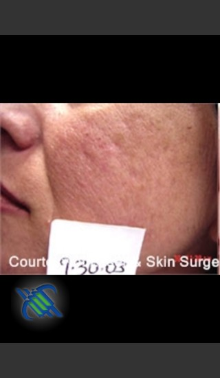 Before Photo for Treatment of Facial  Acne Scars Left Side - Roy G. Geronemus, M.D. - Prejuvenation