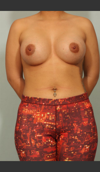 After Photo for Breast Augmentation - El Paso Cosmetic Surgery - Prejuvenation