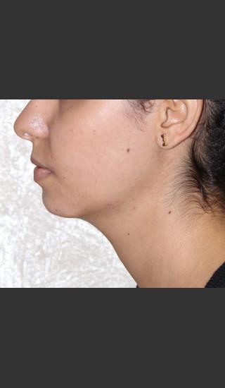 After Photo for Chin Augmentation - Bryan J. Correa, MD - Prejuvenation
