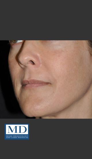 After Photo for Melasma Face Treatment 118 - Jill S. Waibel, MD - Prejuvenation