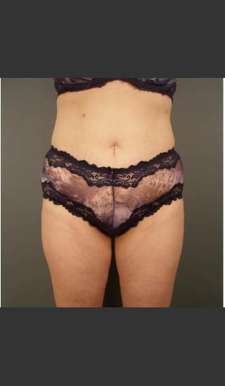 After Photo for Liposuction #44 Front View - Dr. David Amron - Prejuvenation