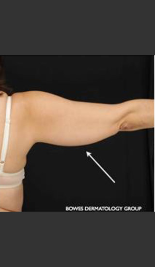 Before Photo for CoolSculpting on Woman's Upper Arm - Leyda Elizabeth Bowes, M.D. - Prejuvenation