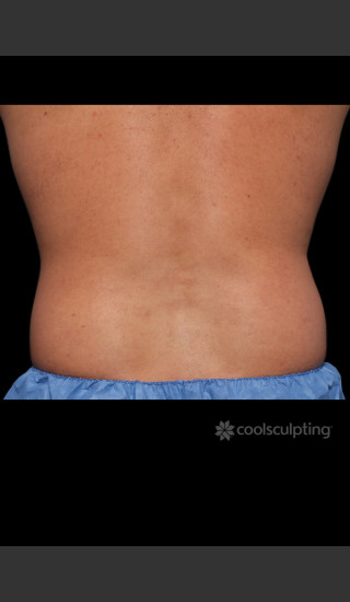 Before Photo for CoolSculpting on Man's Flanks -  - Prejuvenation
