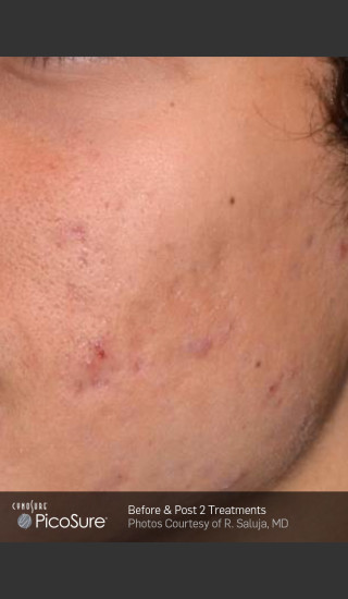 After Photo for Acne Scar Treatment with Picosure -  - Prejuvenation