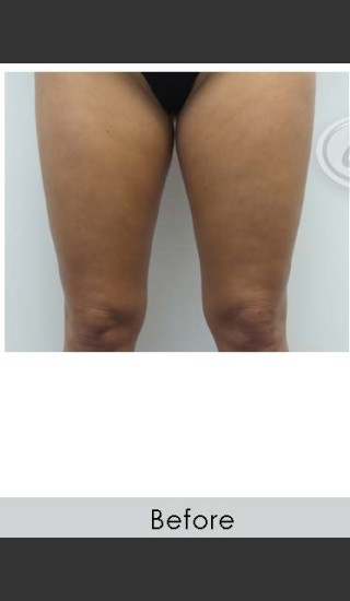 Before Photo for Vanquish for Thighs - Annie Chiu, MD - Prejuvenation