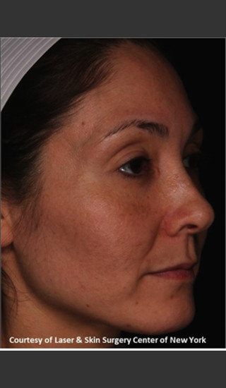 After Photo for Facial Skin Rejuvenation with Clear and Brillant Permea - Roy G. Geronemus, M.D. - Prejuvenation