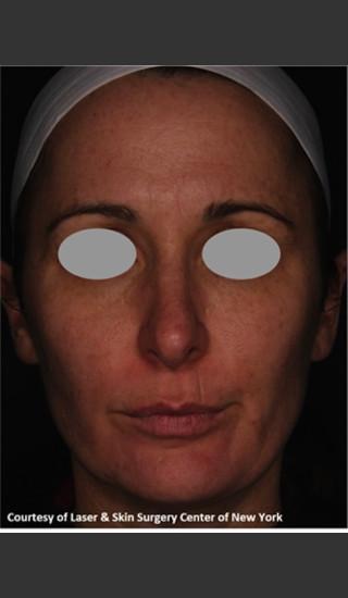 After Photo for Treatment of Facial Pigmentation -  - Prejuvenation