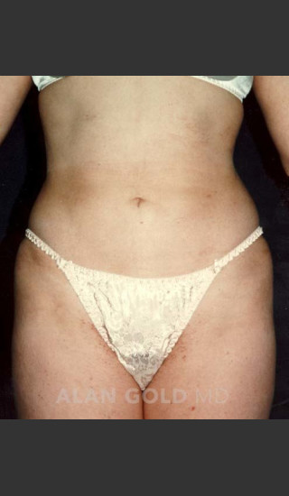 After Photo for Liposuction 439 - Alan Gold MD - Prejuvenation