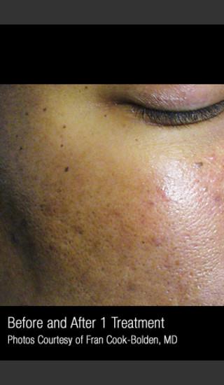After Photo for Treatment of Facial Pigmentation #331 -  - Prejuvenation