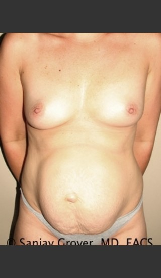 Before Photo for Mommy Makeover 8446 - Sanjay Grover MD FACS - Prejuvenation