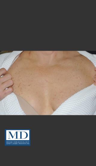 Before Photo for IPL Brown Spots Treatment 108 - Jill S. Waibel, MD - Prejuvenation