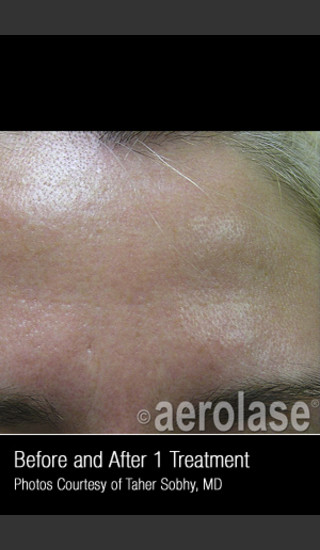 After Photo for Treatment of Pores and Skin Texture #338 -  - Prejuvenation