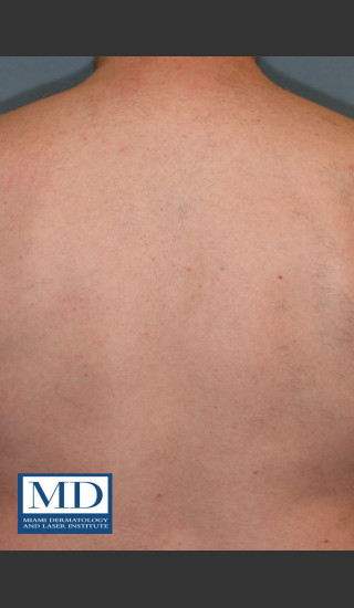After Photo for Laser Hair Removal 122 - Jill S. Waibel, MD - Prejuvenation
