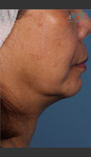 Before Photo for Ultherapy Skin Laxity Treatment - Robert Weiss, M.D., F.A.A.D., F.A.C.Ph - Prejuvenation