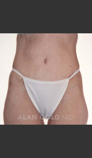 After Photo for Circumferential Body Lift 367 - Alan Gold MD - Prejuvenation