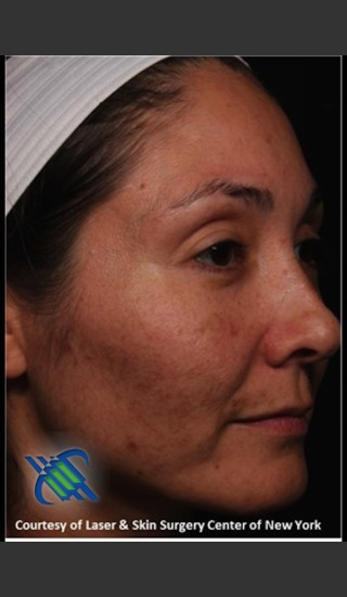 Before Photo for Facial Skin Rejuvenation of Face - Roy G. Geronemus, M.D. - Prejuvenation