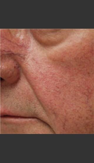 Before Photo for Dr. Langdon IPL Treatment  - Robert Langdon - Prejuvenation