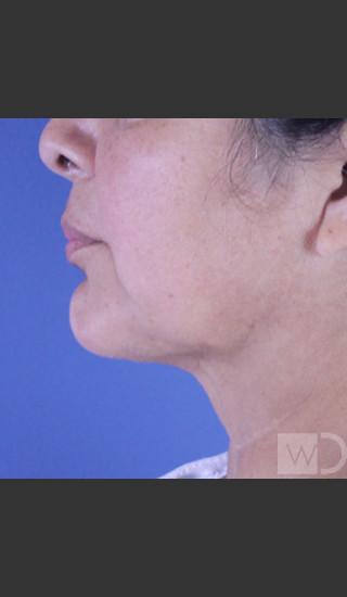 After Photo for SmartLipo Liposuction of Lower Face - Daniel Friedmann  - Prejuvenation