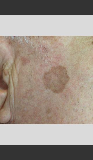 Before Photo for Elos - Facial Contouring & Wrinkles -  - Prejuvenation