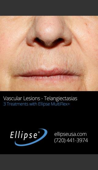 After Photo for 3 Full Face Rejuvenation Treatments -  - Prejuvenation