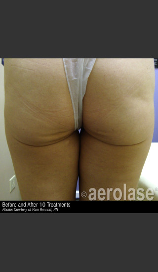 After Photo for Treatment of Skin Laxity #309 -  - Prejuvenation