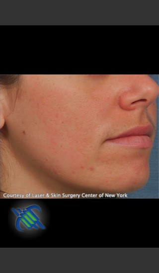 After Photo for Facial Acne Scaring Treatment - Right Side  - Roy G. Geronemus, M.D. - Prejuvenation