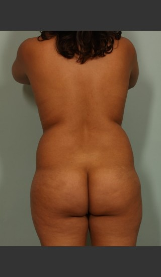 Before Photo for Brazilian Butt Lift - El Paso Cosmetic Surgery - Prejuvenation