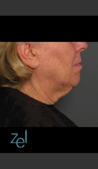 Before Photo for Treatment of Lower Face with Ultherapy - Brian D. Zelickson, M.D. - Prejuvenation