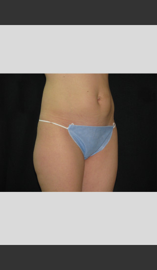 After Photo for Fat Cell Destruction Body Contouring -  - Prejuvenation