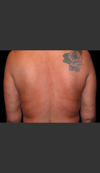 Before Photo for Body Contouring Treatment #113 -  - Prejuvenation