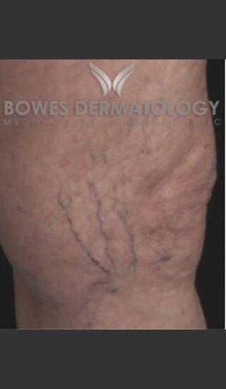 Before Photo for Spider Vein Treatment - Leyda Elizabeth Bowes, M.D. - Prejuvenation