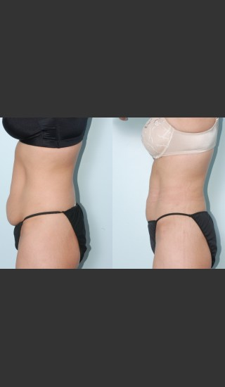 After Photo for Liposuction of waist, hips, thighs, and tummy. - Mark B. Taylor, M.D. - Prejuvenation
