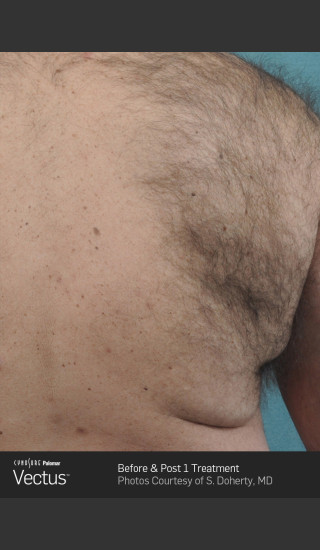 Before Photo for Hair Removal of Back with Vectus -  - Prejuvenation