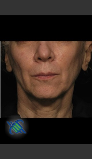 Before Photo for Treatment of Facial Laxity with Profound - Roy G. Geronemus, M.D. - Prejuvenation