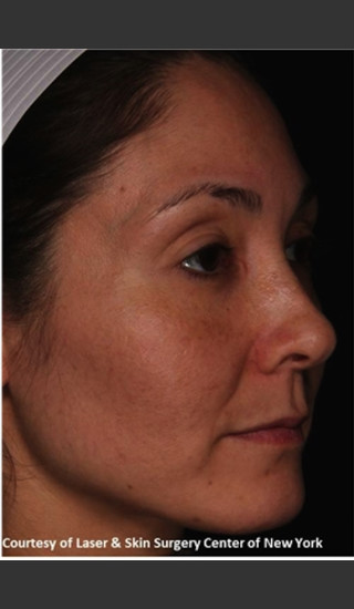 After Photo for Treatment of Melasma -  - Prejuvenation