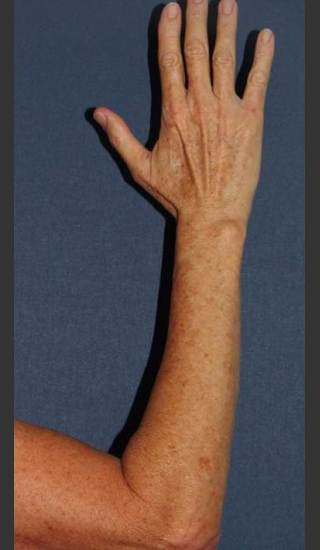 Before Photo for Brown Spot Reduction on Arm - William F. Groff, M.D. - Prejuvenation