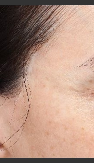 After Photo for Scar on right and left temple at hairline  - Paul M. Friedman, M.D. - Prejuvenation