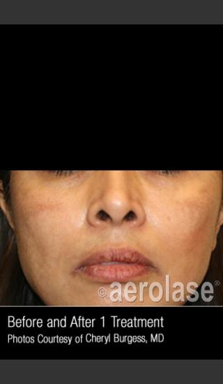 After Photo for Treatment of Melasma #318 -  - Prejuvenation