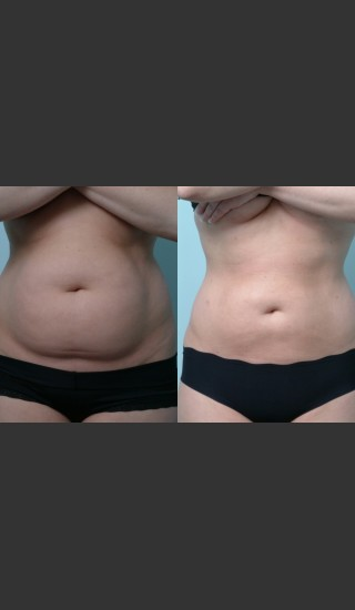 Before Photo for Liposuction - Mark B. Taylor, M.D. - Prejuvenation