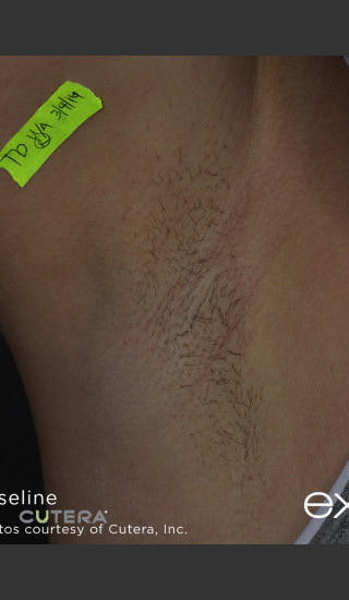 Before Photo for Hair Removal of Under Arms With Excel HR -  - Prejuvenation