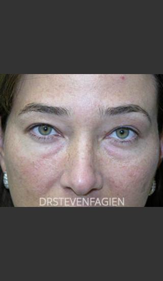 Before Photo for Upper and Lower Blepharoplasty - Patient 6 - Steven Fagien, MD - Prejuvenation