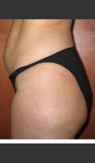 After Photo for 3DEEP Lower Body Cellulite Reduction -  - Prejuvenation