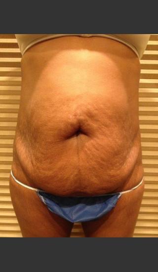 Before Photo for Dr. Palmer Tummy Tuck 01  - Shane Palmer - Prejuvenation