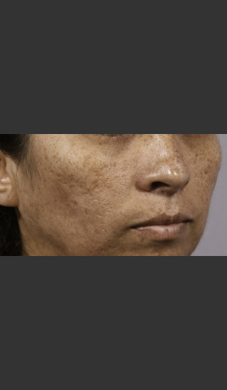 Before Photo for 3DEEP Intensif Microneedling #1 -  - Prejuvenation