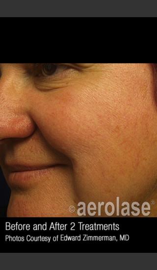 After Photo for Treatment of Facial Blood Vessels #323 -  - Prejuvenation